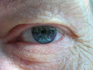 La degeneracion macular es una enfermedad de los ojos